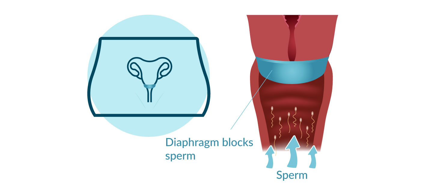 Diaphragm - Types of Contraceptives in Hong Kong