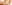 OT&P Varicose Veins Causes and Treatment